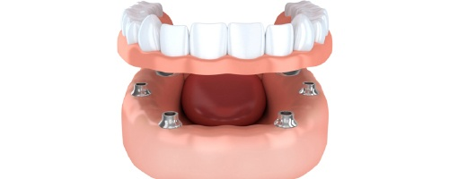 A diagram of an implant-retained denture.