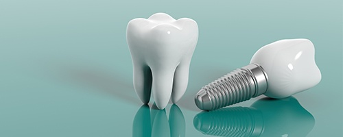 Animation of tooth and implant supported crown