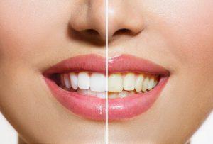 Half-white smile
