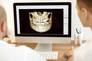 dentists looking a digital image of a mouth