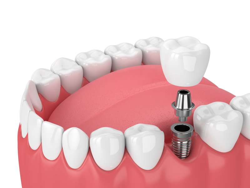 a dental implant in the lower arch